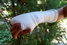 Nilkkamurtumien lisäksi myös käden murtumat lisääntyvät jonkin verran kesällä. Kuva: Ville Juuti